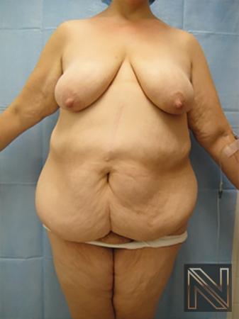 Abdominoplasty: Patient 12 - Before Image 1