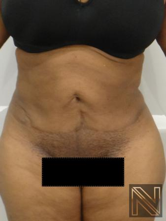 Mini Tummy Tuck: Patient 1 - After Image