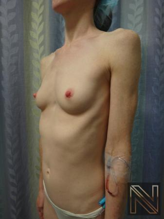 Breast Augmentation: Patient 17 - Before Image 2