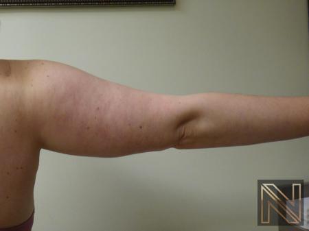 Liposuction: Patient 24 - After Image 4