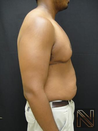 Gynecomastia: Patient 1 - After 5