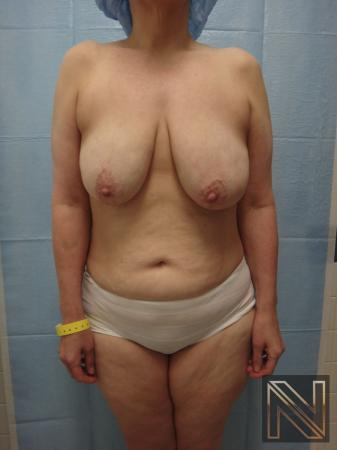 Breast Lift: Patient 3 - Before Image 1