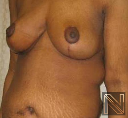 Breast Lift: Patient 13 - After Image 3