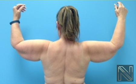 Brachioplasty: Patient 4 - Before and After Image 2