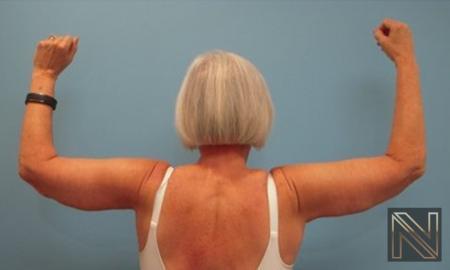 Brachioplasty: Patient 9 - After Image 2