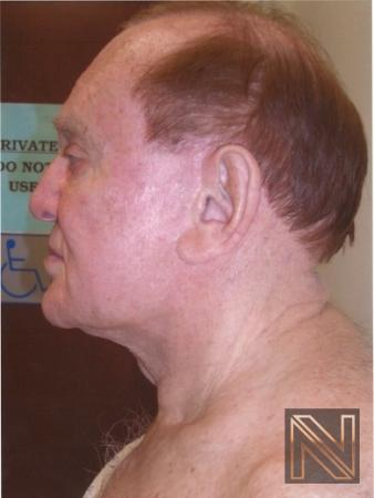 Facelift/Mini Facelift: Patient 9 - Before Image