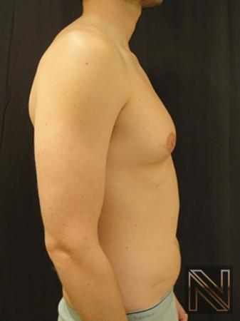 Gynecomastia: Patient 4 - Before and After Image 5