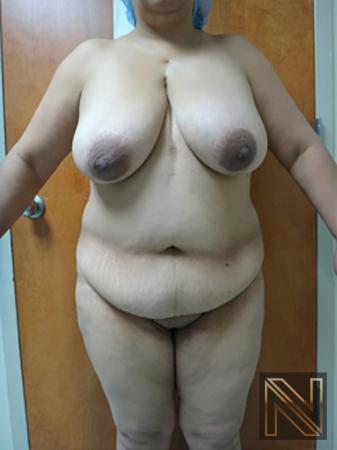 Abdominoplasty: Patient 11 - Before Image 1