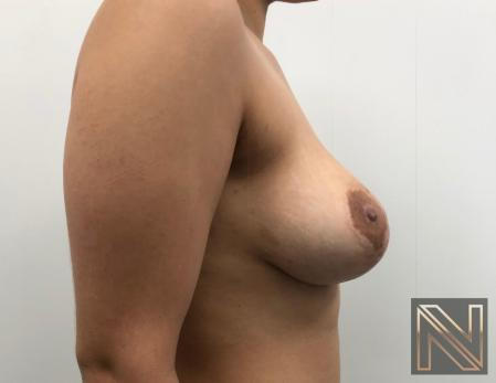 Breast Lift: Patient 17 - Before and After Image 5