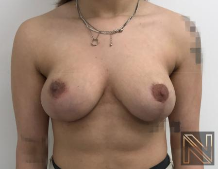 Breast Lift: Patient 17 - After Image 1
