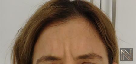 Dysport® : Patient 5 - Before Image