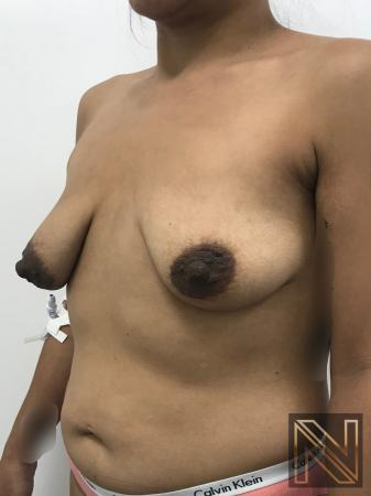 Breast Lift: Patient 1 - Before Image 3