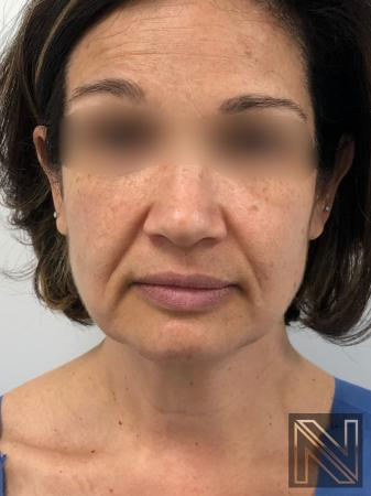 Halo™: Patient 1 - Before Image 1