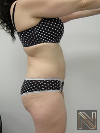 Liposuction: Patient 5 - After Image 3