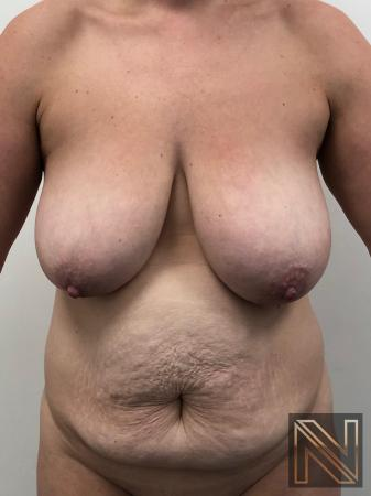 Abdominoplasty: Patient 28 - Before Image 1