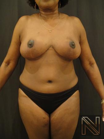 Breast Reduction: Patient 4 - After 1