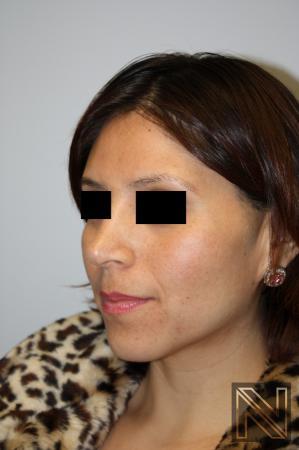 Rhinoplasty: Patient 5 - After 3