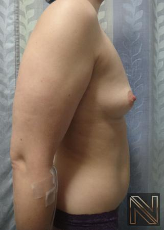 Breast Augmentation: Patient 15 - Before Image 4