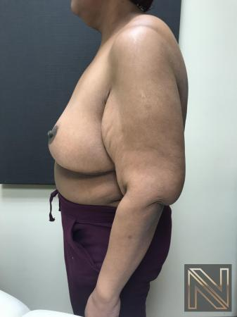 Breast Reduction: Patient 2 - After 3