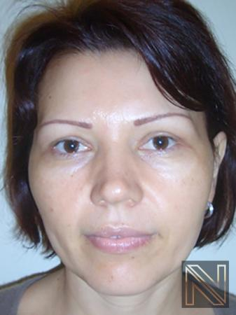 Blepharoplasty: Patient 4 - After Image