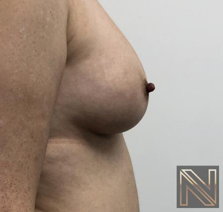 Fat Transfer - Body: Patient 2 - After Image 3