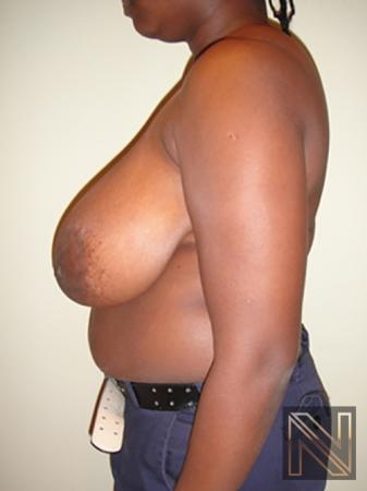 Breast Reduction: Patient 6 - Before Image 4