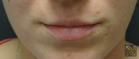 Fillers: Patient 3 - Before Image 1