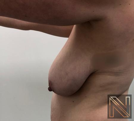 Breast Lift: Patient 16 - Before 2