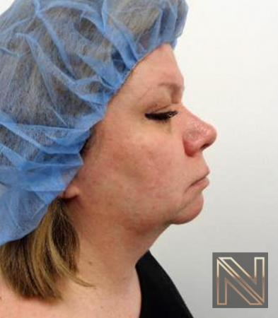 Fractional Resurfacing: Patient 2 - After Image 4