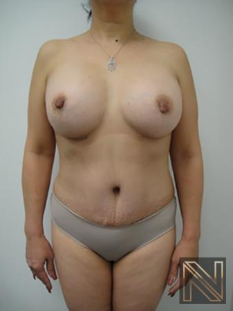 Abdominoplasty: Patient 6 - After Image