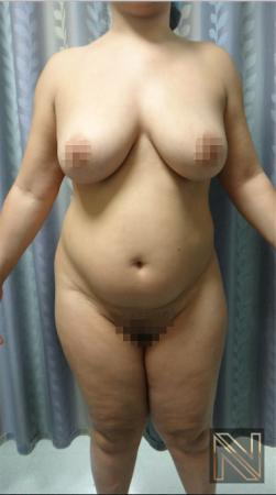 Liposuction: Patient 15 - Before Image 1