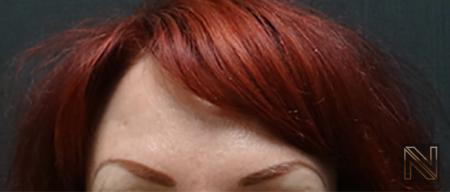 BOTOX® Cosmetic: Patient 4 - After Image 1
