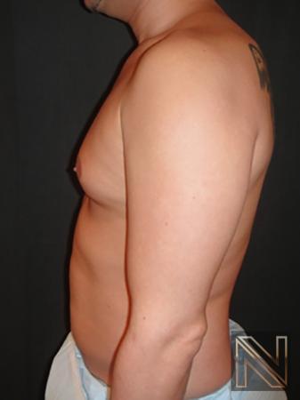 Gynecomastia: Patient 2 - Before Image 4