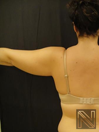 Liposuction: Patient 25 - Before 1