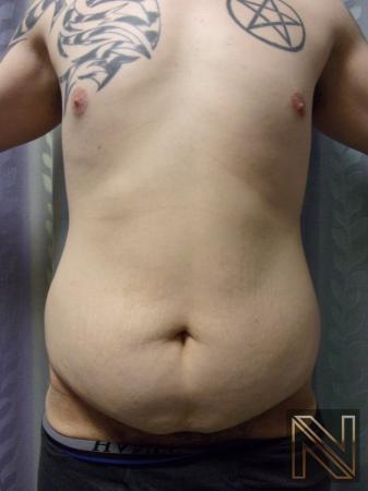 Liposuction: Patient 13 - Before 1