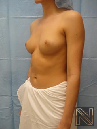 Breast Augmentation: Patient 6 - Before Image 2