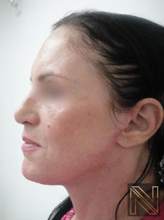 Fractional Resurfacing: Patient 1 - After Image