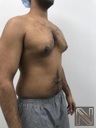 Gynecomastia: Patient 7 - Before Image 4
