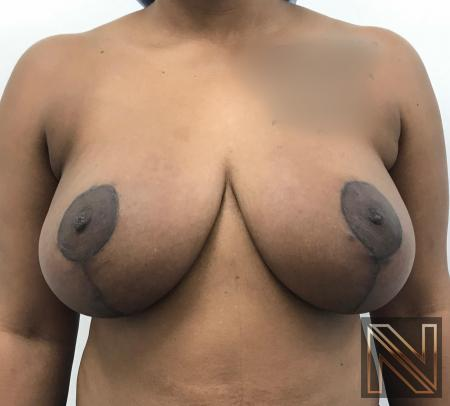 Breast Lift: Patient 14 - After Image 1