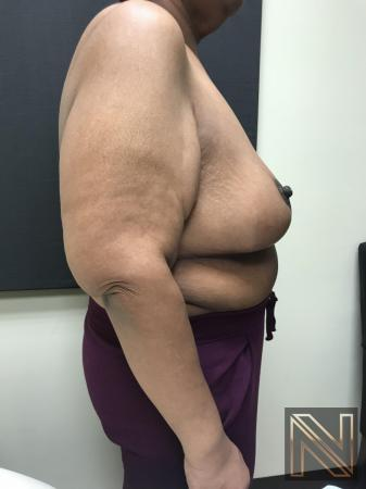 Breast Reduction: Patient 2 - After 2