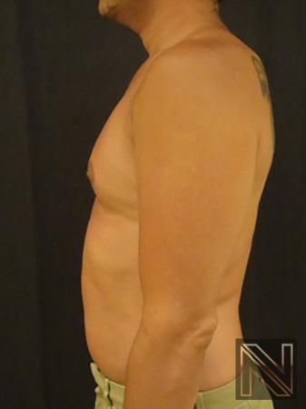 Gynecomastia: Patient 2 - After Image 4