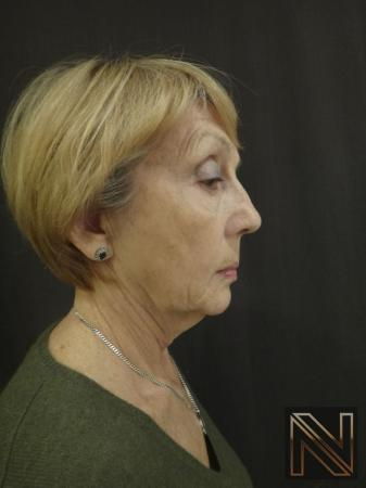 Ultherapy®: Patient 2 - Before 3