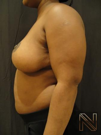 Breast Reduction: Patient 3 - After Image 4