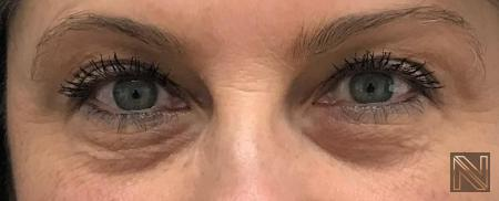Fillers: Patient 15 - Before Image 1