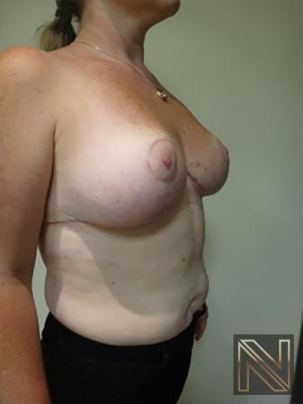 Breast Reduction: Patient 9 - After Image 3