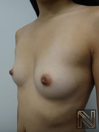 Inverted Nipple Surgery: Patient 2 - After 2
