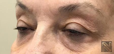 Fractional Resurfacing: Patient 7 - Before Image