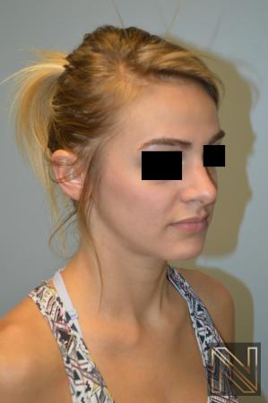 Rhinoplasty: Patient 3 - After Image 3