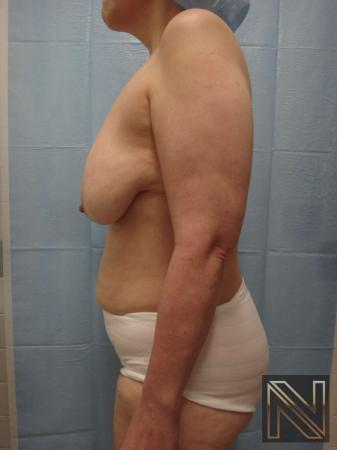 Breast Lift: Patient 3 - Before Image 4