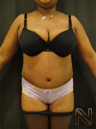Abdominoplasty: Patient 10 - After Image